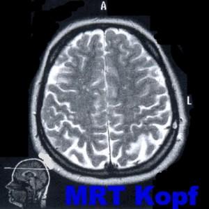 Диагностика методом триплексного сканирования интракраниальных сосудов головного мозга в Мюнхене